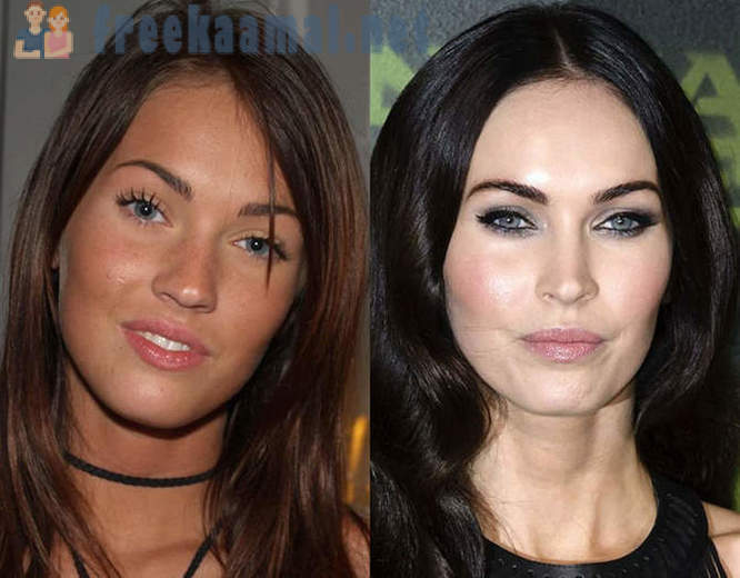 Celebrities and their faces renewed